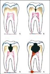 Bolest zubů - Zubní poradna - byroncaspergolf.com